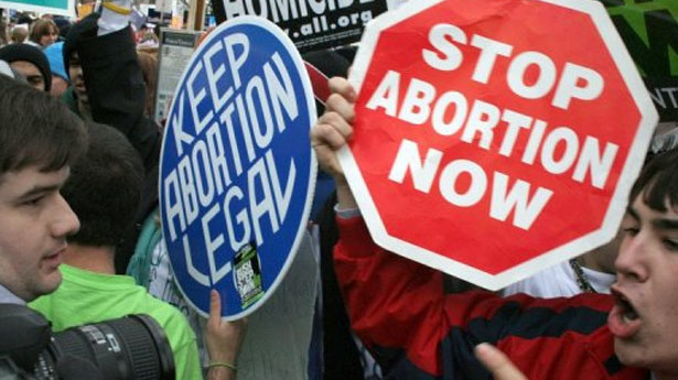 Abortion should be encouraged